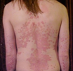 300px-psoriasis_on_back1